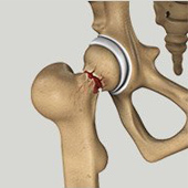 Hip Injury